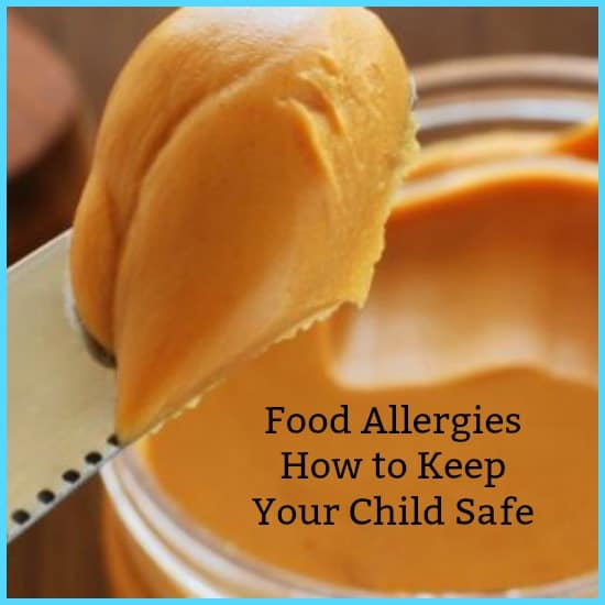 food allergies peanut butter